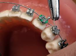 Personal statement for graduate school requirements orthodontist